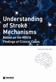 Understanding of Stroke Mechanisms:Based on the ~